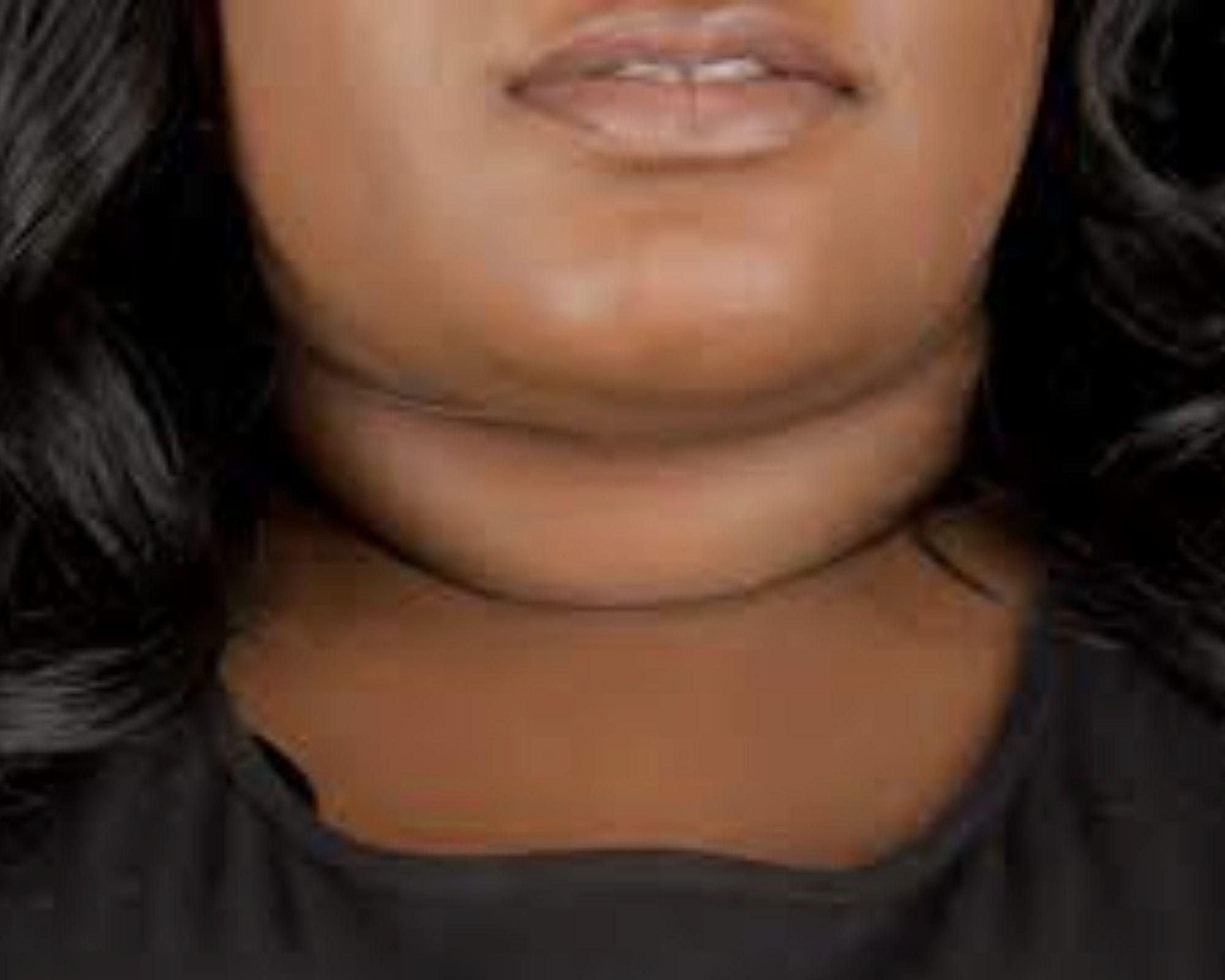 Sagging Face, eyes & neck